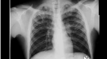 Xquang phổi thường quy