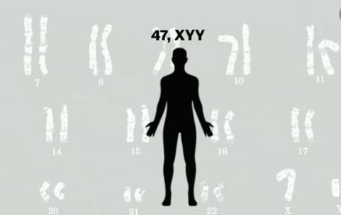 Hội chứng 47,XYY