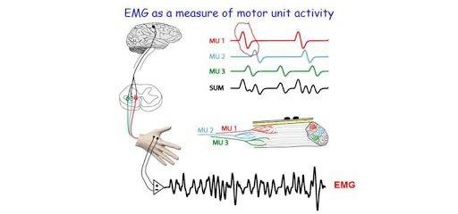 Chẩn đoán điện