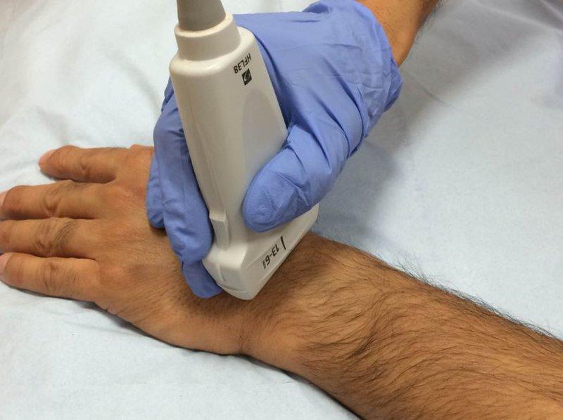 Siêu âm dây thần kinh giữa đoạn cổ tay siêu âm khớp cổ tay