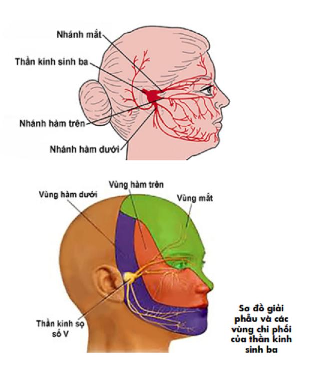 Kỹ thuật hủy hạch sinh ba (GASSER) bằng tiêm cồn tuyệt đối