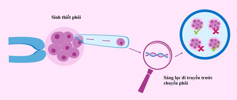 Sàng lọc di truyền trước chuyển phôi