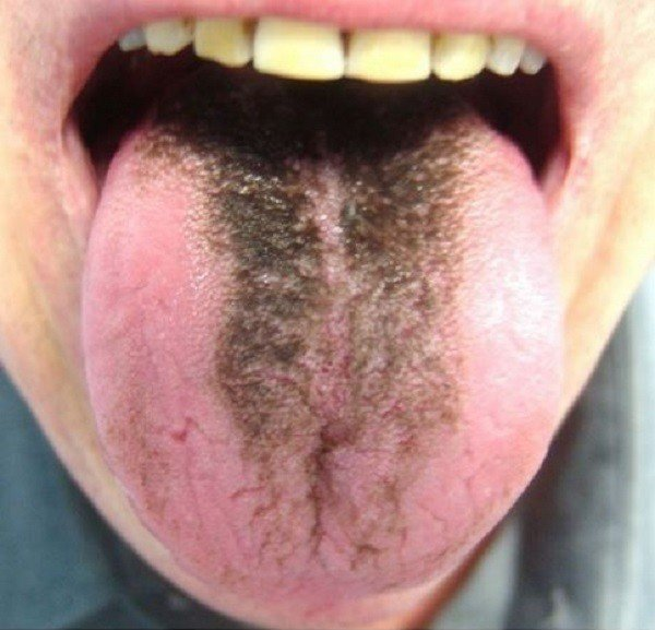 Lưỡi lông đen