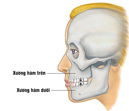 Kết quả hình ảnh cho xương hàm trên