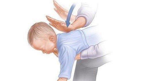 Hướng dẫn sơ cứu trẻ bị hóc dị vật đường thở