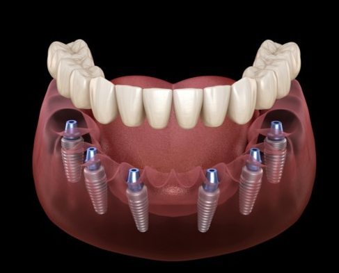 Cấy ghép Implant All On 6