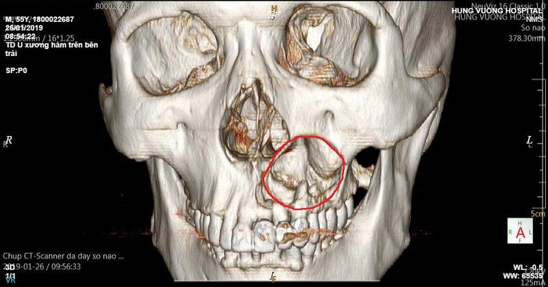 U nang lành tính trong mô mềm vùng hàm mặt