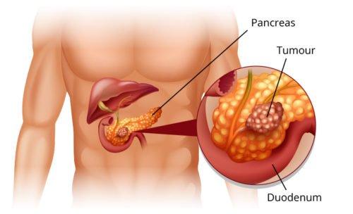 Ung thư tuyến tụy gây ra bệnh tiểu đường