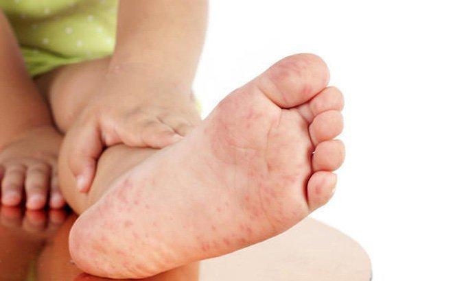 Bệnh tay chân miệng: Lâm sàng, chẩn đoán, biến chứng