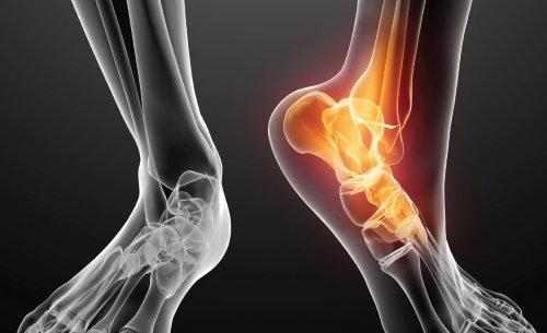 Hội chứng xương thuyền phụ-1