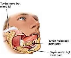 Viêm tuyến nước bọt dưới hàm do sỏi