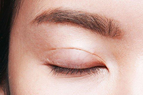 Phẫu thuật cắt u mi mắt, mí mắt
