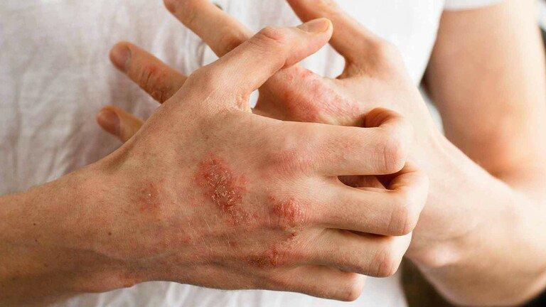Nguyên nhân và hình ảnh viêm da cơ địa