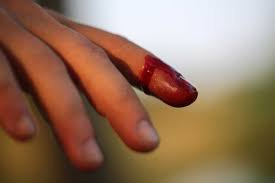 Đông máu nội mạch lan tỏa