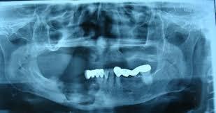 Hoại tử xương hàm do Bisphosphonate