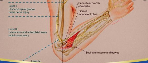Viêm đám rối thần kinh cánh tay
