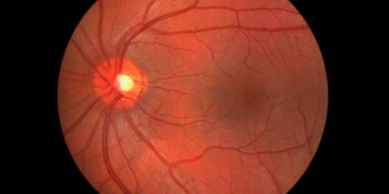 Mắt bị bong dịch kính