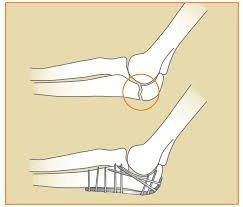 Gãy vỡ xương khuỷu tay