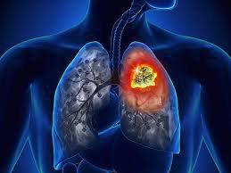 ung thư phổi không tế bào nhỏ giai đoạn di căn
