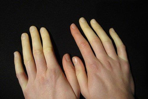 bàn tay lạnh