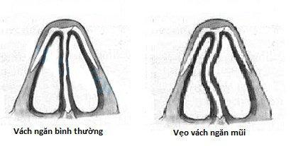 vẹo lệch vách ngăn mũi
