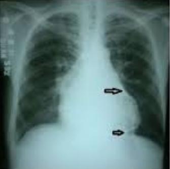 bóng tim trên X quang