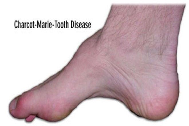 bệnh Charcot-Marie-Tooth (bệnh teo cơ mác)