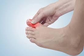 Cứng khớp ngón chân cái
