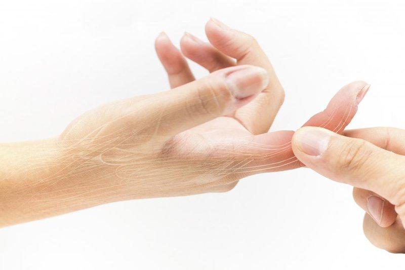 Bong gân ngón tay