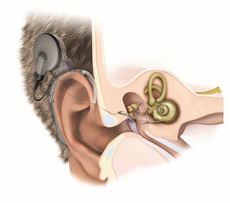 ốc tai điện tử