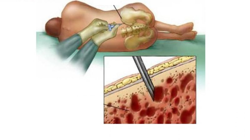 sinh thiết tủy xương