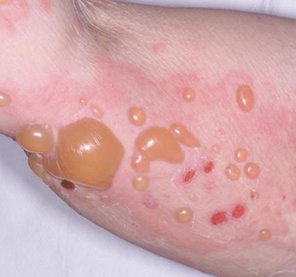 Bệnh bọng nước Pemphigoid