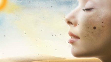 Bệnh về da do ánh nắng mặt trời
