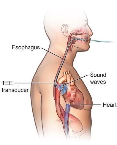 Khi nào cần siêu âm tim qua thực quản?