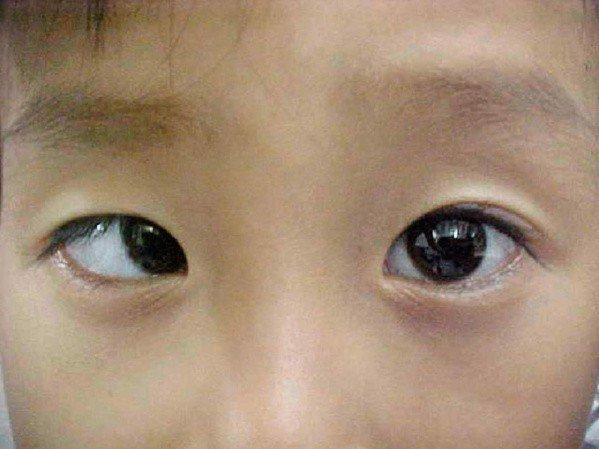 mắt lắc