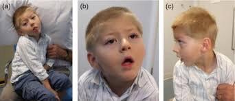 hội chứng Allan-Herndon-Dudley