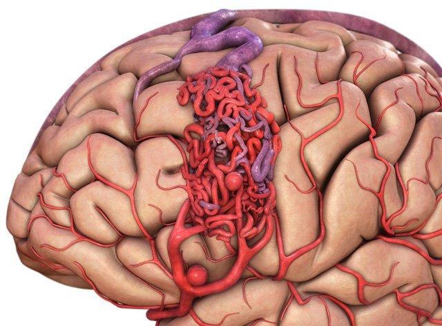 dị dạng mạch máu não (AVM)