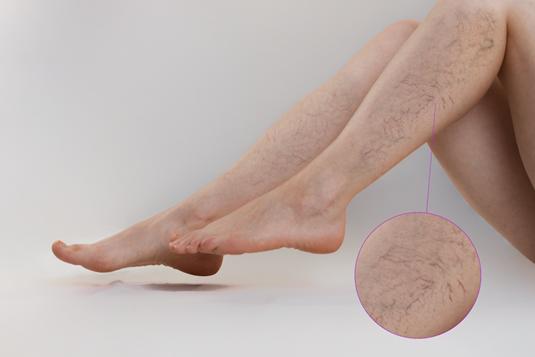 Giãn tĩnh mạch chân rất thường gặp ở phụ nữ sau sinh