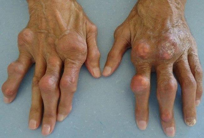 Bàn tay gout