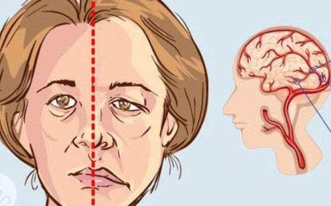 Co cứng cơ sau tai biến mạch não