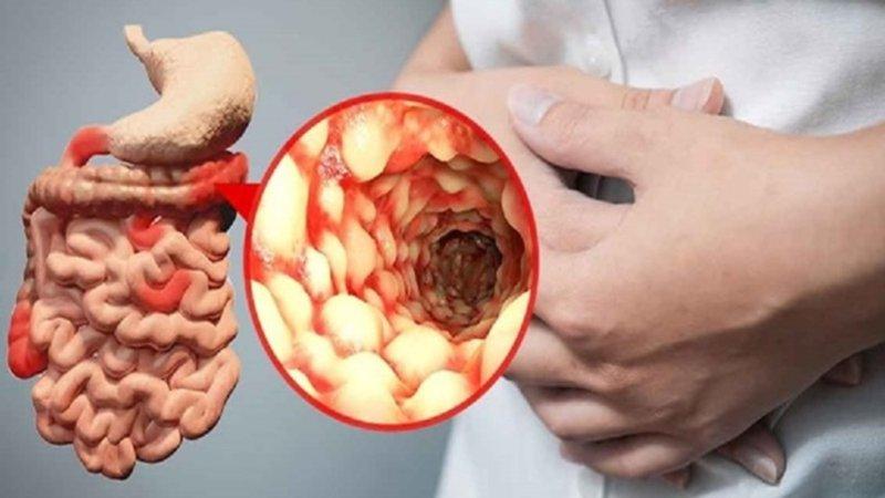 Bệnh viêm ruột mạn tính