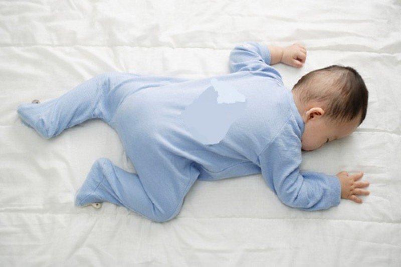 Trẻ nằm sấp nhiều rất dễ bị đột tử sơ sinh
