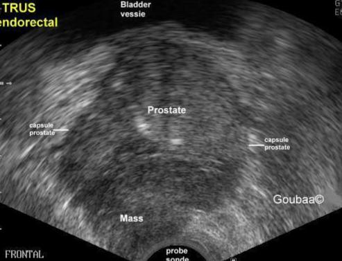 Hình ảnh siêu âm ung thư tiền liệt tuyến