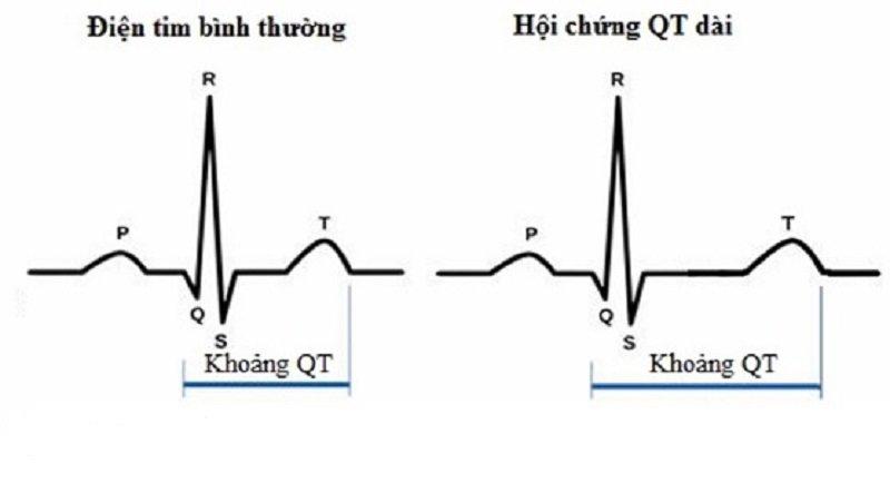 hội chứng QT dài mắc phải