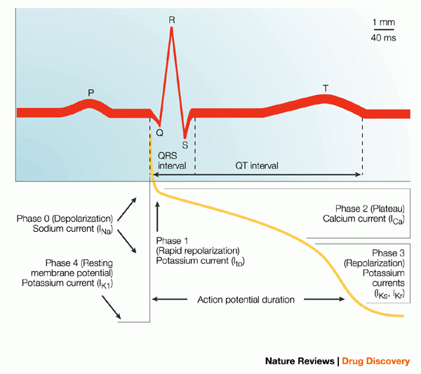 hội chứng QT dài bẩm sinh