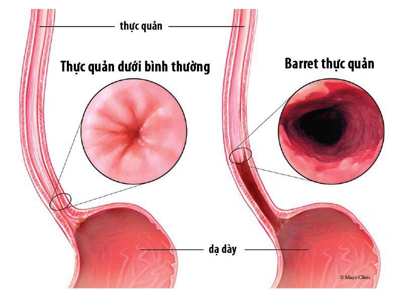Barrett thực quản là một trong những biến chứng của trào ngược dạ dày