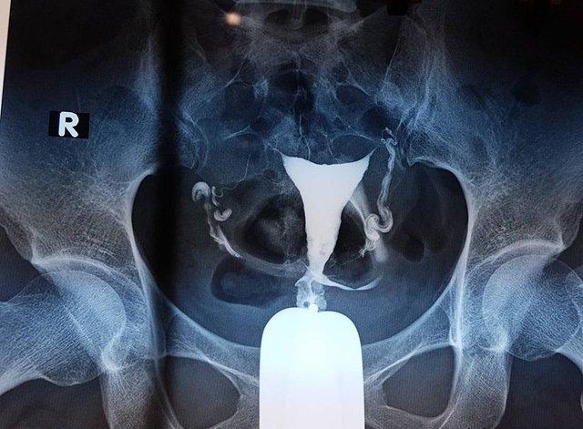 Chụp X-quang tử cung vòi trứng