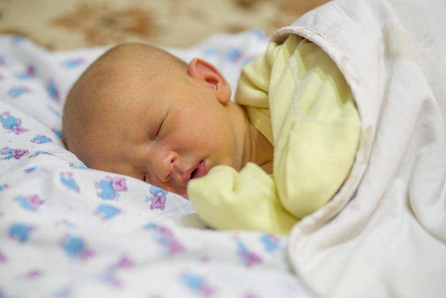 Vàng da kéo dài ở trẻ sơ sinh