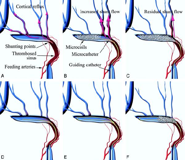 rò động tĩnh mạch màng cứng