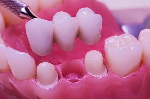 Mất răng số 2
